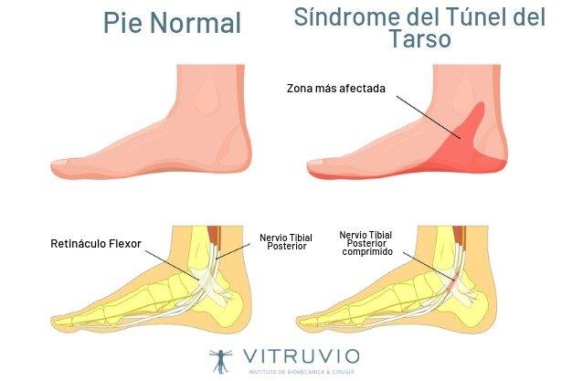 ¿Qué es el Síndrome del Túnel del Tarso y cómo tratarlo? 1